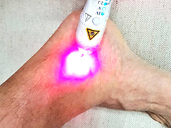 Aparelho de Laserterapia Ricardo Trajano - 1