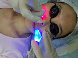 Equipamento de Laser para Estética