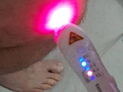Equipamento de Laser para Fisioterapia
