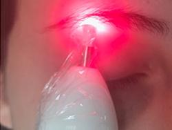 Equipamento de Laser para Micropigmentação