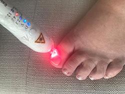 Equipamento de Laser para Podologia - 1