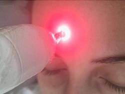 Venda de Aparelho de Laser em São Carlos - 1